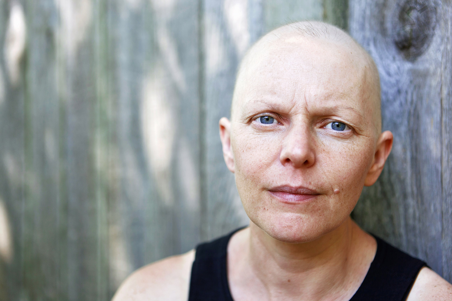 A woman being treated for breast cancer using chemotherapy poses for a portrait.