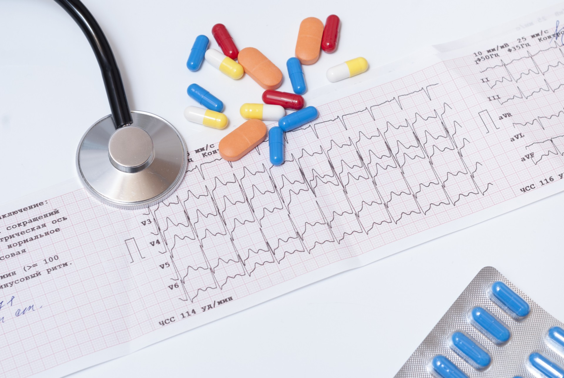 medical pills, stethoscope and electrocardiogram results on the table